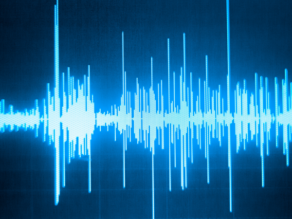 How To Use The LinkedIn Audio-Function